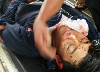 Jasad korban Ardiansyah yang dievakuasi usai mengalami kecelakaan.